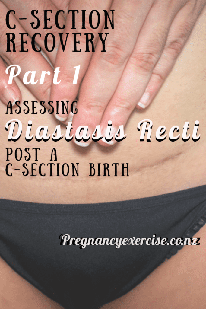 C-Section Recovery Part 1: Assessing Diastasis Recti